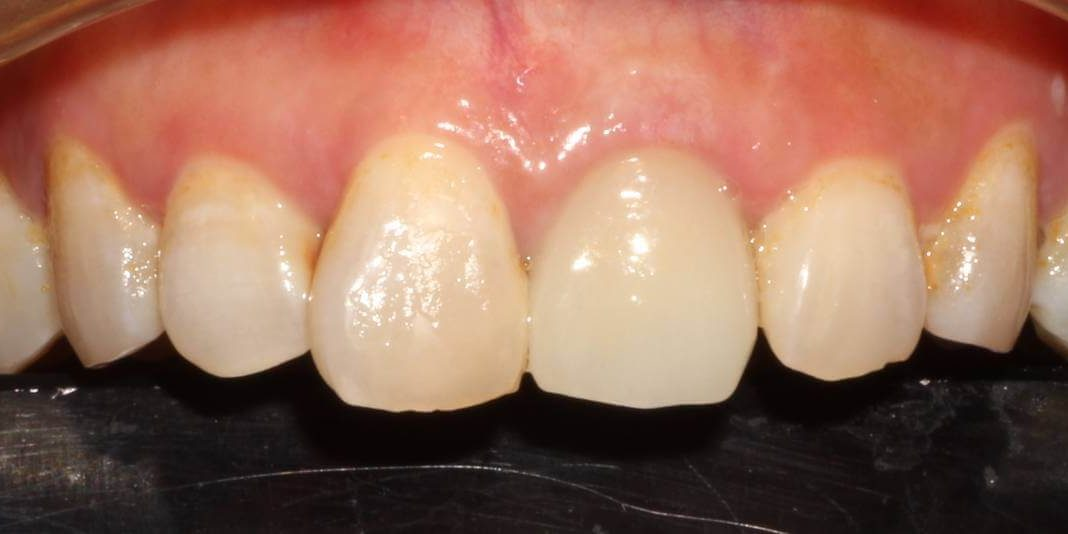 Implant 6b After
