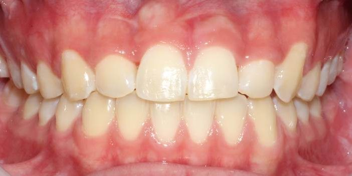 Ortho 10 After