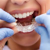 Orthodontic retainer