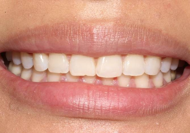 Whitening 1 After