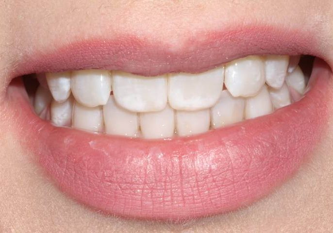 Whitening 10 After