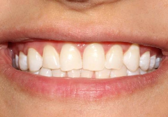 Whitening 3 After