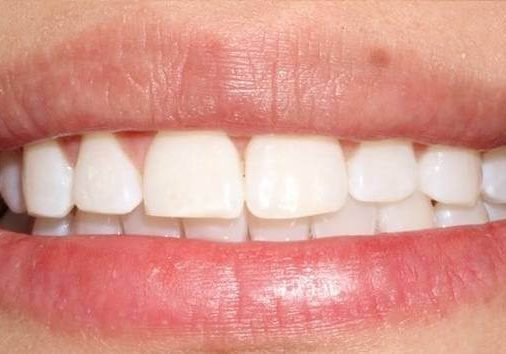Whitening 4 After