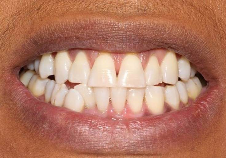 Whitening 5 After