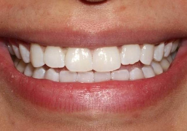 Whitening 6 After