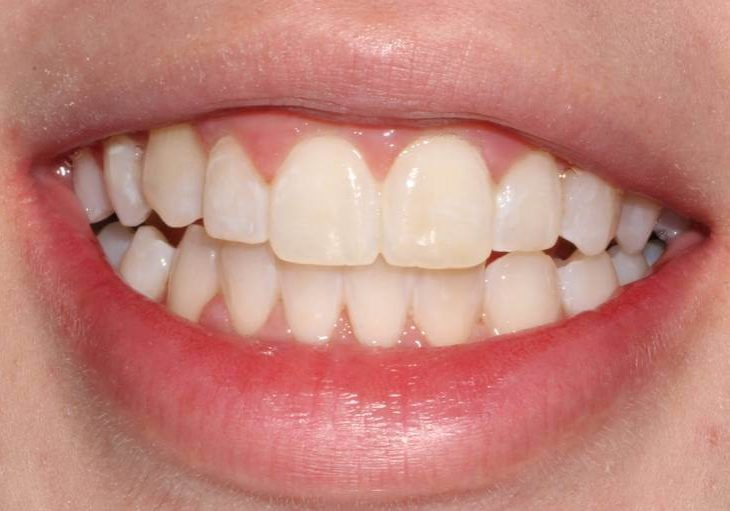 Whitening 8 After