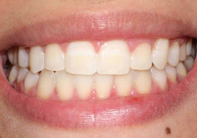Whitening 9 After